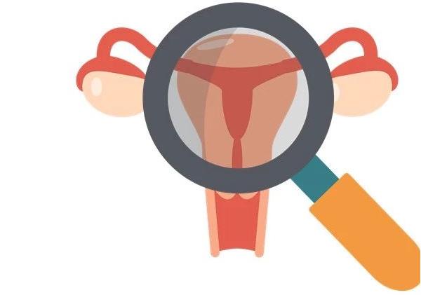 宫腔镜检查