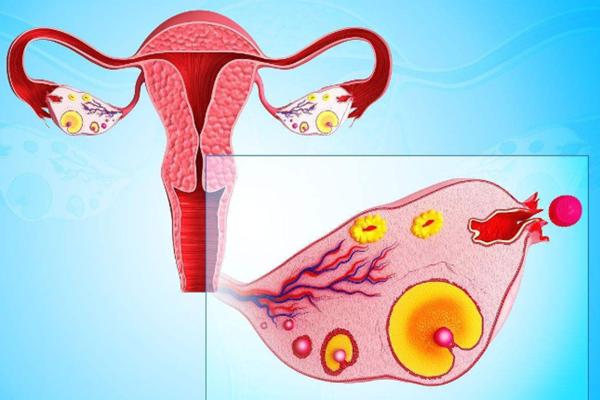 美国试管婴儿促排会使女性的体重增加吗?