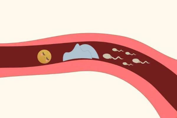 患有子宫肌瘤,去泰国做试管婴儿如何赢得好孕?