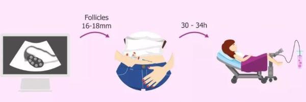 美国试管婴儿促排卵与乳腺癌之间到底有没有关系?