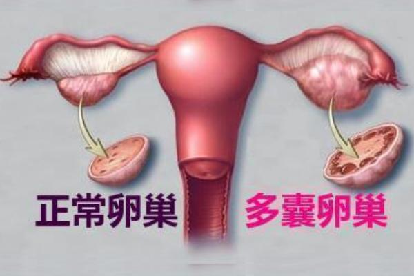 患有多囊卵巢综合症,赴美做试管婴儿生双胞胎的几率更高吗?