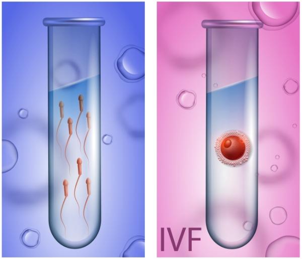 提高美国试管婴儿成功率,从提高精子和卵子质量开始